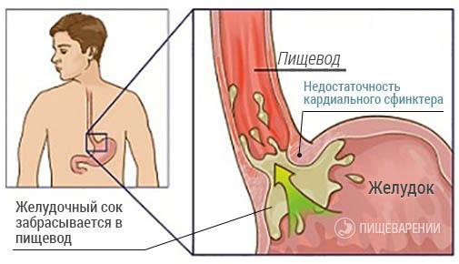 фото недостаточности кардии желудка