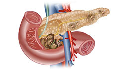 опухоли на поджелудочной железе