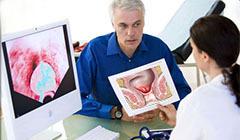 ранние симптомы рака прямой кишки у пациента