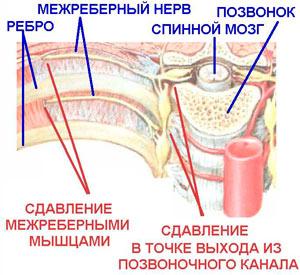 Невралгия позвоночного нерва