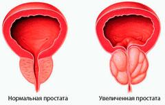 Номальная и увеличенная простата