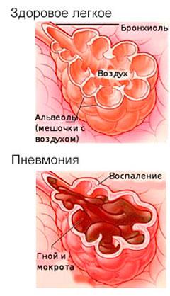 Здоровое лёгкое и при пневмонии