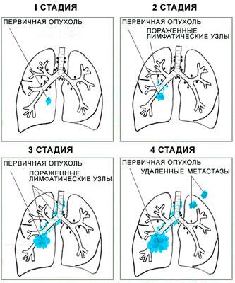4 стадии рака легкого