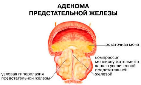 Признаки простатита у мужчин признаки чем лечить лекарства