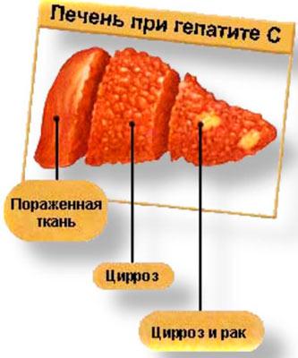 Печень при гепатите С