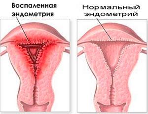Воспаленная и нормальная эндометрия