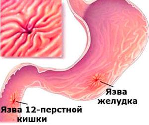 Язва желудка и 12-ой кишки
