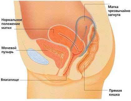 От чего при сексе может болеть матка