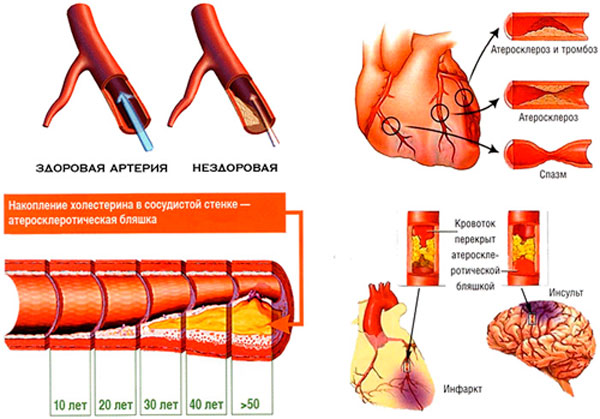 Фактор атеросклероза в ишемической болезни сердца