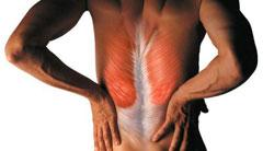 Миозит спинных мышц