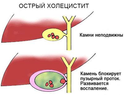Холецистит острый