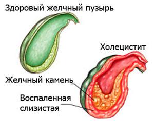Холецистит здоровый и больной желчный пузырь
