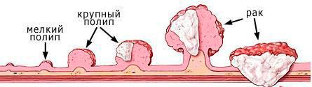 Полипы желудка