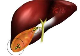 тяжесть желудке неприятный запах изо рта