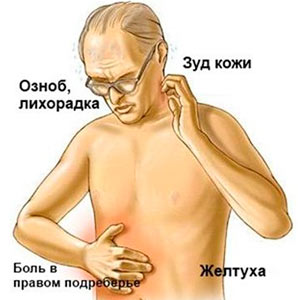 Желтуха и симптомы