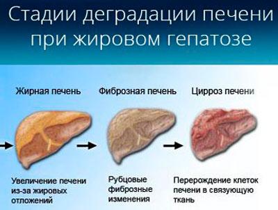Может ли рыбий жир снизить холестерин