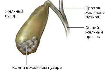 Холецистит камни в желчном пузыре