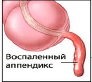 Воспаленный аппендикс больной