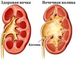 Болит живот и спина одновременно почему опоясывающая боль отдает в спину