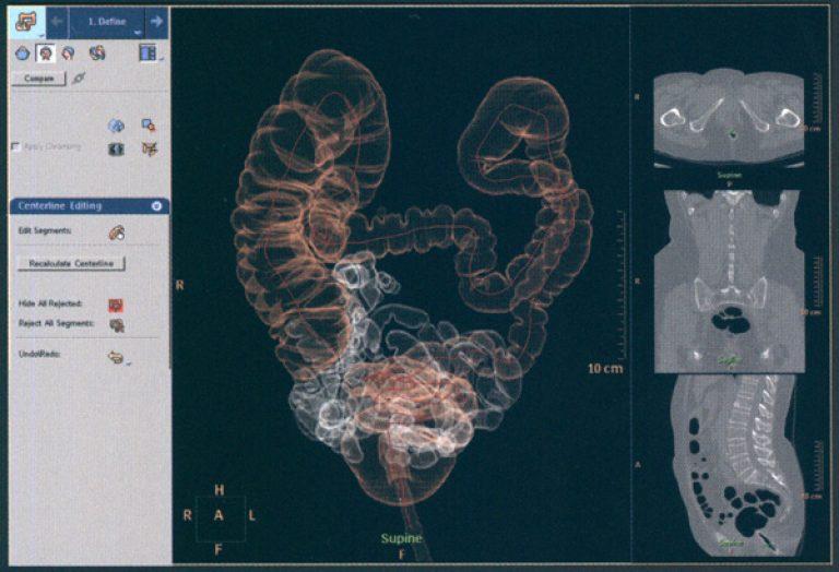 Виртуальная колоноскопия кишечника как проводится