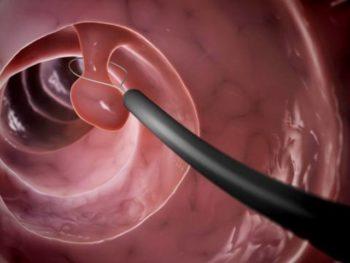 Полип антрального отдела желудка симптомы