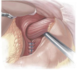 Грыжа пищевода: симптомы, косвенные и эндоскопические признаки ГПОД, что это, фото грыжи пищеводного отверстия диафрагмы