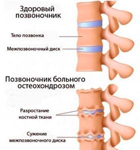 Здоровый позвонок и больной остеохондрозом