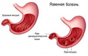 Здоровый желудок и поражённый язвой