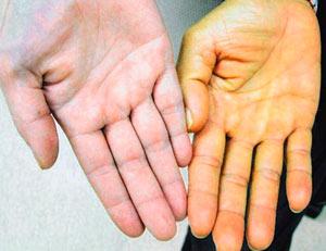 Синдром Жильбера повышенная желтушность