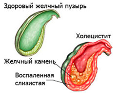 Здоровый желчный пузырь и повреждённый холециститом