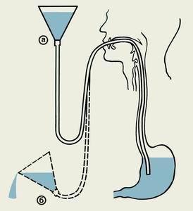 промывания желудка