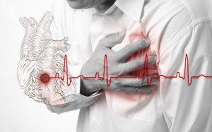 infarto-cop-ok-ok-300x187