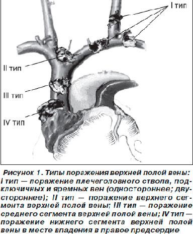 Рисунок и примеры поражения полых вен