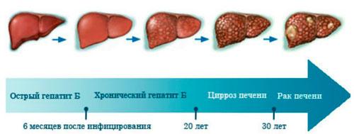 Стадии гепатита В