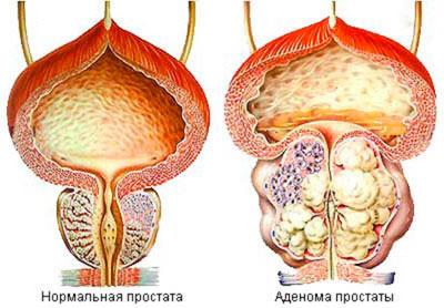 Нормальная простата и больная