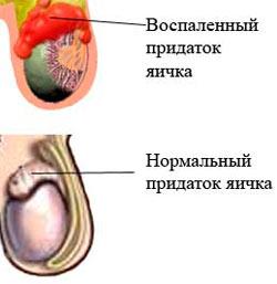 Воспаленный придаток яичка
