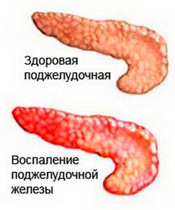 Заболеваание панкреатит