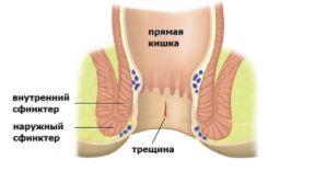 Боль после дефекации в заднем проходе лечение
