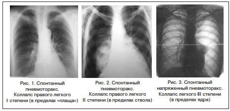 Причины и лечение боли под ложечкой