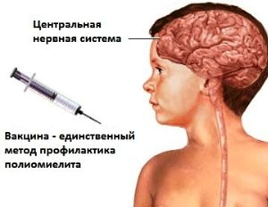 Температура озноб рвота головная боль у ребенка